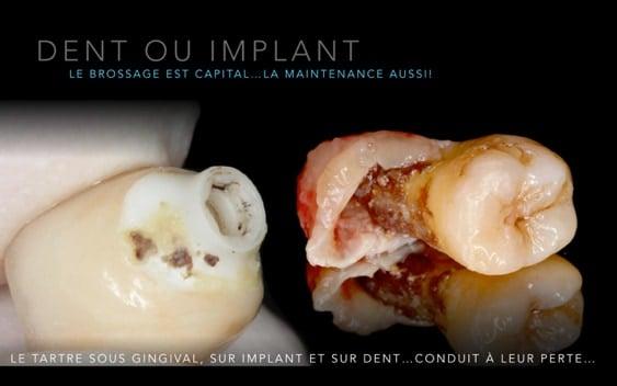 Hygiene buccal, les implants plus vulnérable que les dents